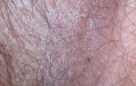 Зуд и шелушение кожи в паху – причины, лечение, полезные советы