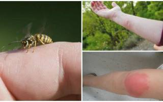 Эффективные средтва от укуса осы: первая помощь, народные, препараты
