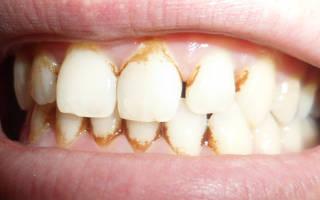 Удалить зубной камень в домашних условиях, как снимают зубной камень в стоматологии: больно ли снимать зубной камень