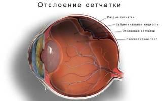 Черные точки перед глазами – причины и лечение
