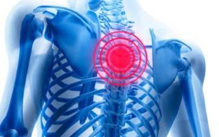Боль в спине между лопатками, болит в области лопаток – причины и лечение
