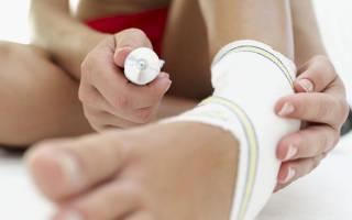 Средства для снятия боли при переломах, как снять боль после перелома