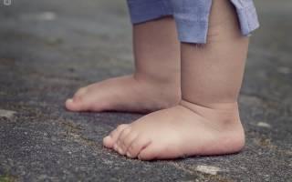 До какого возраста можно вылечить плоскостопие у детей