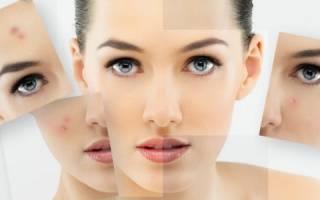 Прыщи на сухой коже лица – что делать