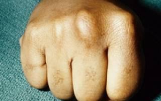 Что такое синдром костяшка боксера, ушиб кулака и костяшки – лечение и профилактика