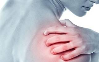 Болит дельтовидная мышца плеча: причины, лечение, диагностика
