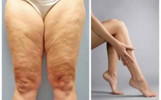Питание и упражнения для сушки мышц ног, как сушить ноги в домашних условиях