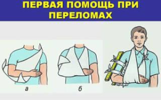 Классификация и виды переломов, первая помощь при переломе