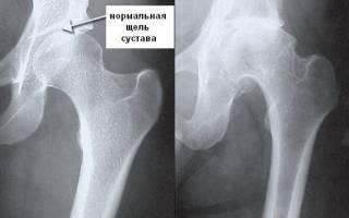 Лечение боли в области бедра, причины болей в бедре правой и левой ноги