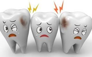 Осложнения, возникающие при лечении кариеса зубов.
