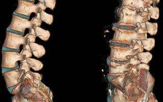 Корешковый синдром при шейном остеохондрозе: симптомы и лечение