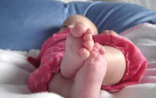 Плоскостопие 1 степени у детей и взрослых, как остановить плоскостопие на ранней стадии, как исправить плоскостопие у детей