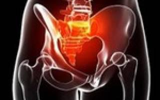 Болит таз: причины, симптомы, лечение