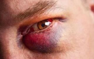 Как избавиться от синяка под глазом, лечение синяков на лице в домашних условиях