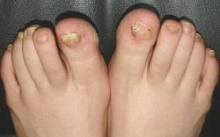 Грибок ногтей лечение травами, рецепты народной медицины против грибка