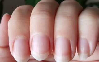 Почему ногти становятся ребристыми, что означают ребристые ногти