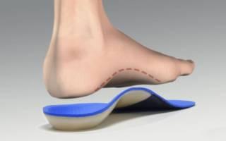 Ортопедические стельки при вальгусной деформации стопы у детей