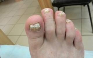 Cамые эффективные таблетки для лечения грибка ногтей