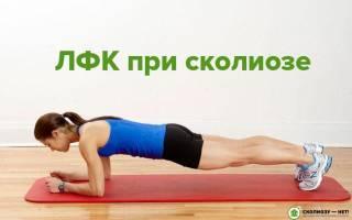 Комплекс лечебной физкультуры при сколиозе, упражнения ЛФК при сколиозе
