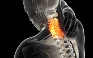 Грыжа Шморля шейного отдела позвоночника – симптомы и лечение