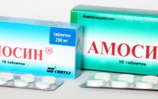 Антибиотики при ангине у взрослых и детей – список эффективных препаратов с ценами