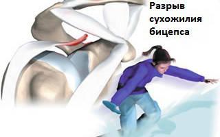 Разрыв бицепса руки, лечение разрыва двуглавой мышцы, симпомы и диагностика разрыва сухожилия бицепса руки