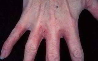 Грибок на руках между пальцами: мази и таблетки