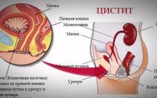 Обострение цистита у женщин: причины, симптомы, лечение