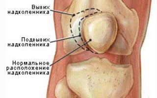 Лечение вывиха надколенника, симптомы смещения надколенника