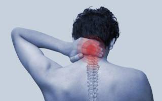 Боль в области шеи сзади, болит шея сзади – причины и лечение