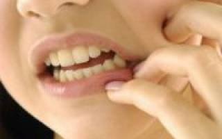 Что делать если зубы реагируют на сладкое
