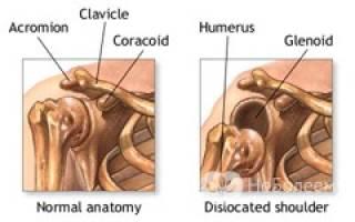 Вывих – симптомы и диагностика вывиха сустава, первая помощь и лечение вывихов