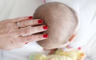 Шелушение кожи головы у грудничка – причины, что делать