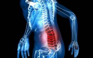 Прострел в спине и пояснице: причины и лечение