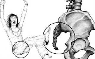 Ушиб кобчика после падения или удара – как лечить