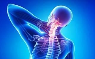 Шейный остеохондроз – что это и чем он опасен