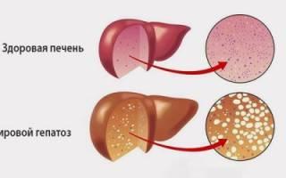 Диета при ожирении печени – что можно, а что нельзя