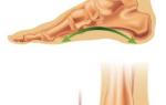 Упражнения при плоскостопии по методу Бубновского