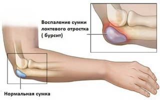 Что такое локтевой бурсит, лечение локтевого бурсита