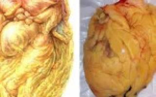 Ожирение сердца: причины и лечение