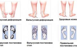 Как правильно делать массаж при вальгусной деформации стопы у детей