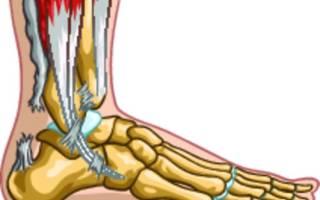 Разрыв ахиллова сухожилия, симптомы и лечение разрыва ахилла
