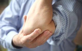 Болит рука в локтевом суставе, боли в области локтя – причины и лечение