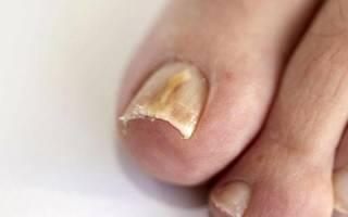 Эффективные мази от грибка на ногтях: список лучших, применение