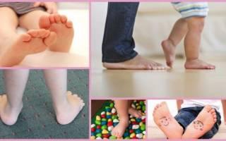 Плоскостопие у годовалого ребенка как распознать