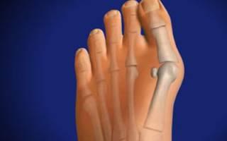 Как избавиться от косточек на ногах, почему возникают косточки на ногах