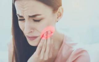Глубокий кариес: боль после лечения, почему болит запломбированный зуб