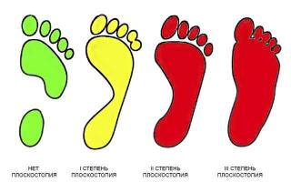 Зарядка для ног при плоскостопии у взрослых