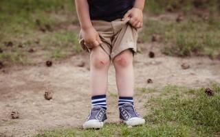 Чем мазать разбитые коленки ребенку чтобы не осталось шрама