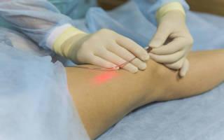 Как вылечить варикоз без операции, пока нарушения не значительны